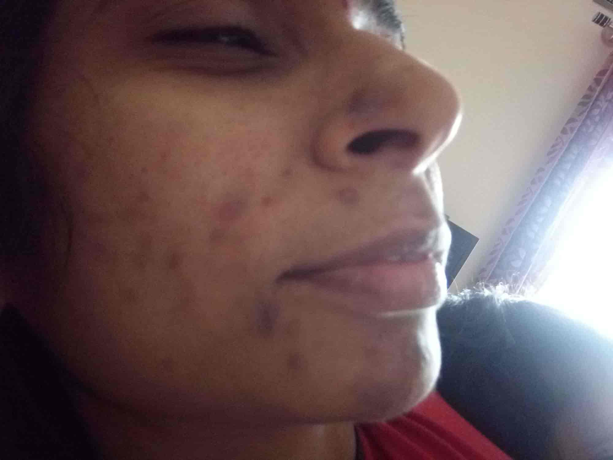Kaya Clinic - Beauty Clinics - Book Appointment Online - Beauty