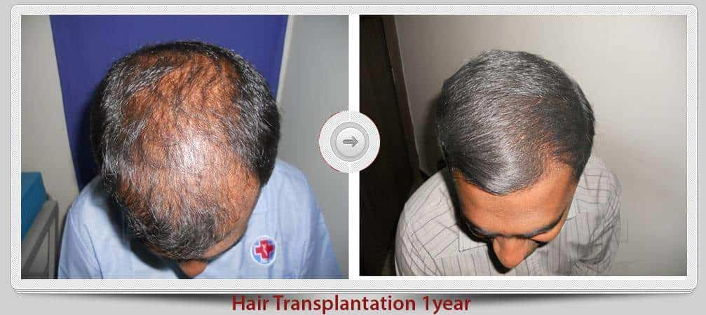 Hair transplant in bangalore rajajinagar
