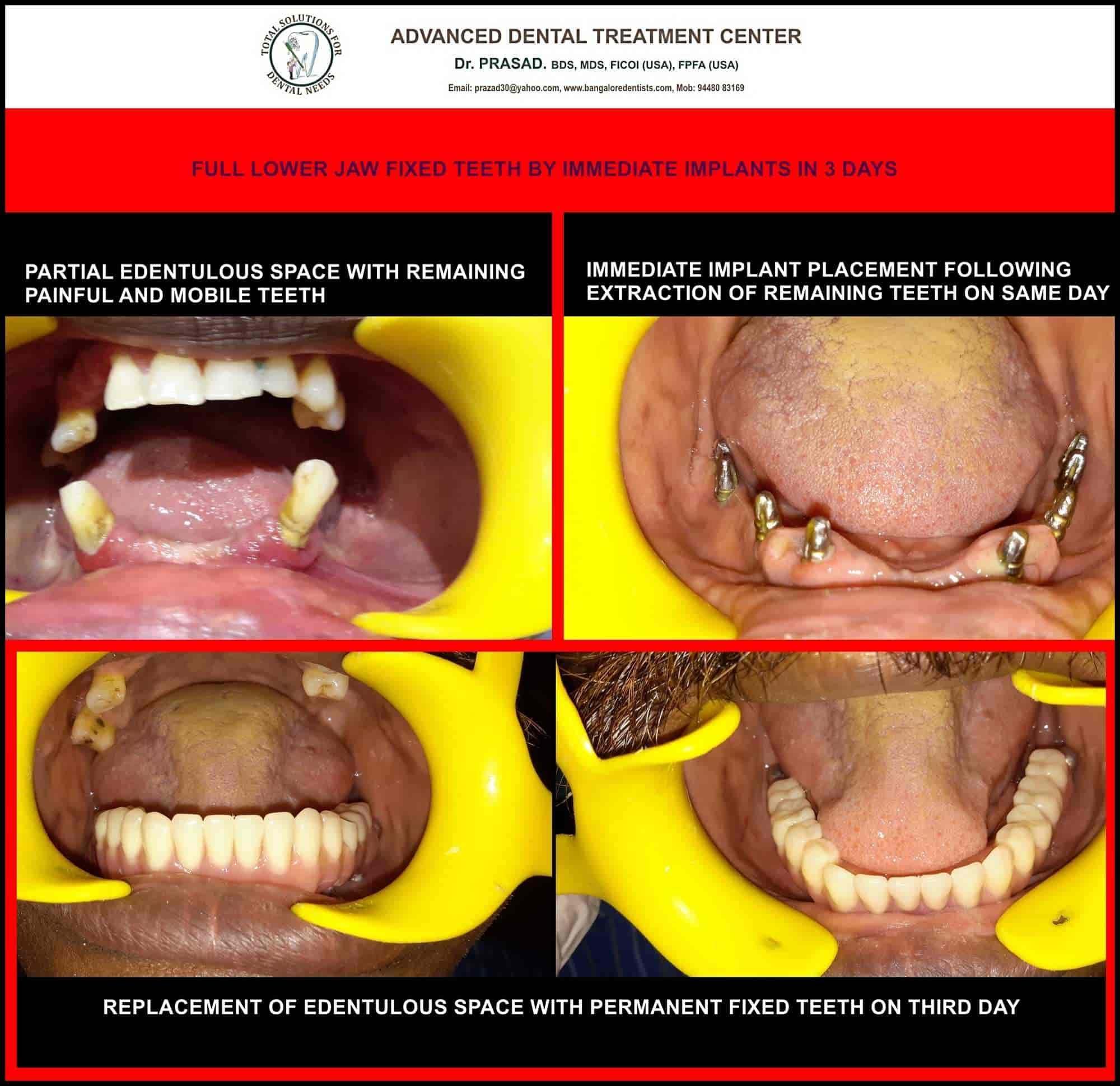 Dr  Prasad Advanced Dental Treatment Centre - Implantologist