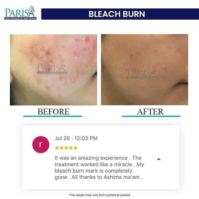 Parisa Skin Cosmetic Laser Centre Photos, Chandigarh Sector