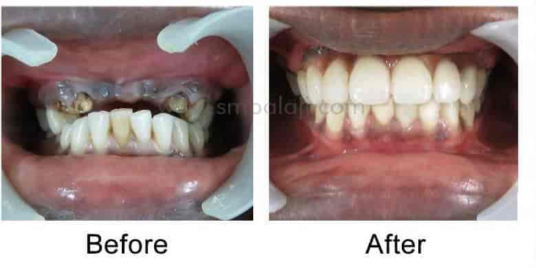 Balaji Dental Craniofacial Hospital Photos, Teynampet