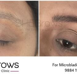 SHEBrows - Eyebrow Clinic For Microblading & More - Clinics in