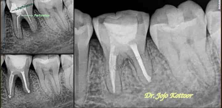 Root Canal Point - Dentists - Book Appointment Online