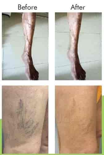 Vein Miracles- The Varicose Vein And Piles Treatment Center - Piles