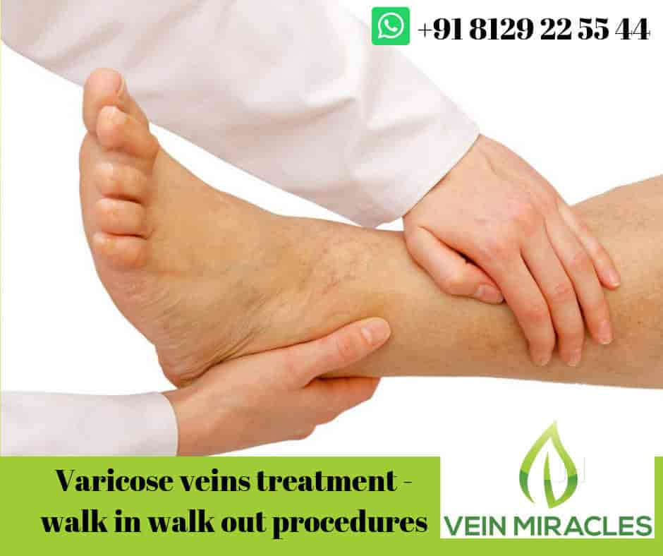 Vein Miracles- The Varicose Vein And Piles Treatment Center