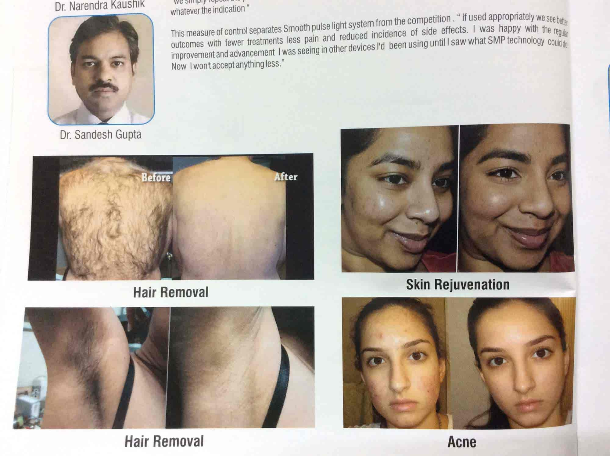 Dr Harish Dr Bharti Hair Removal Laser Clinic (hair Scar Removal