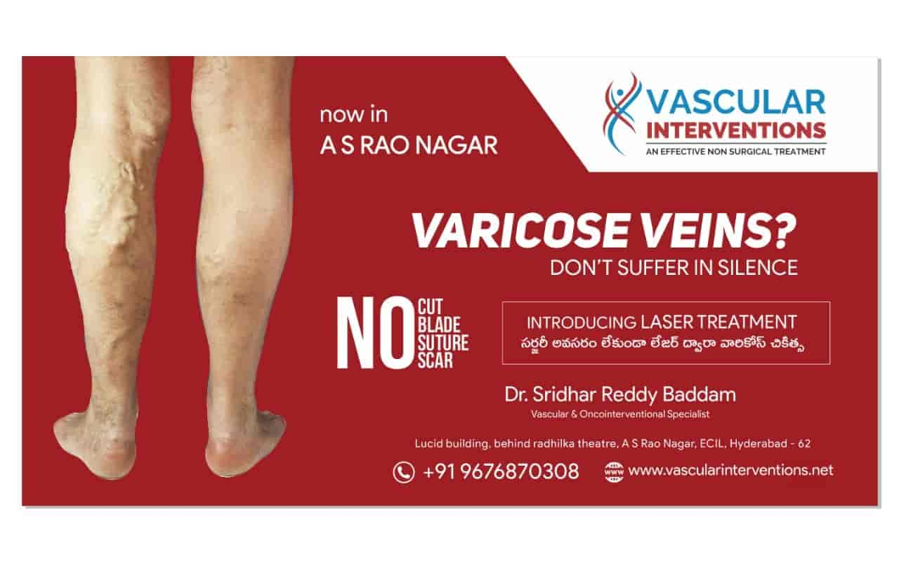 Dr Sridhar Reddy Baddam - Vascular Surgery Doctors - Book