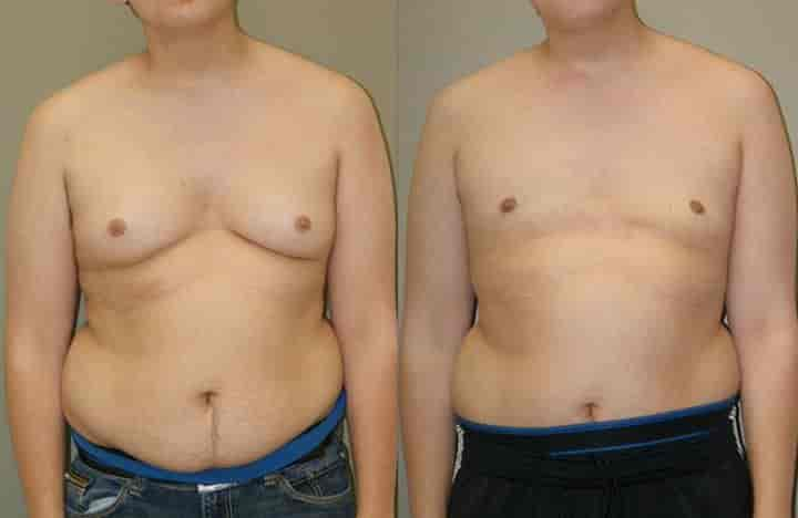 Zenith Plastic Cosmetic Surgery Center Photos, A B Road