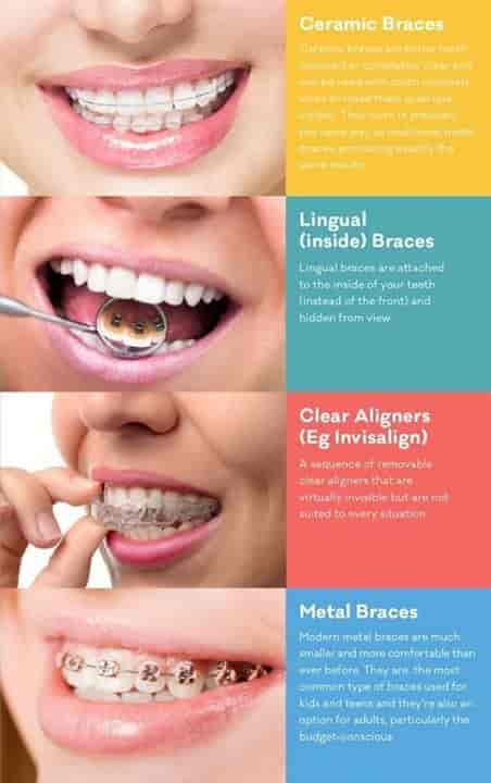 Abdent Care Multispeciality Dental Implant And Laser Centre
