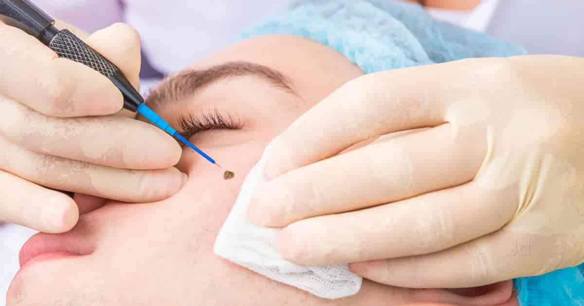 Elite Skin Hair Clinic - Dermatologists - Book Appointment Online