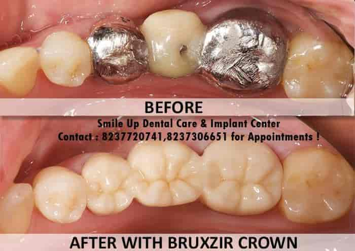 Smile Up Dental Care And Implant Center - Dentists - Book