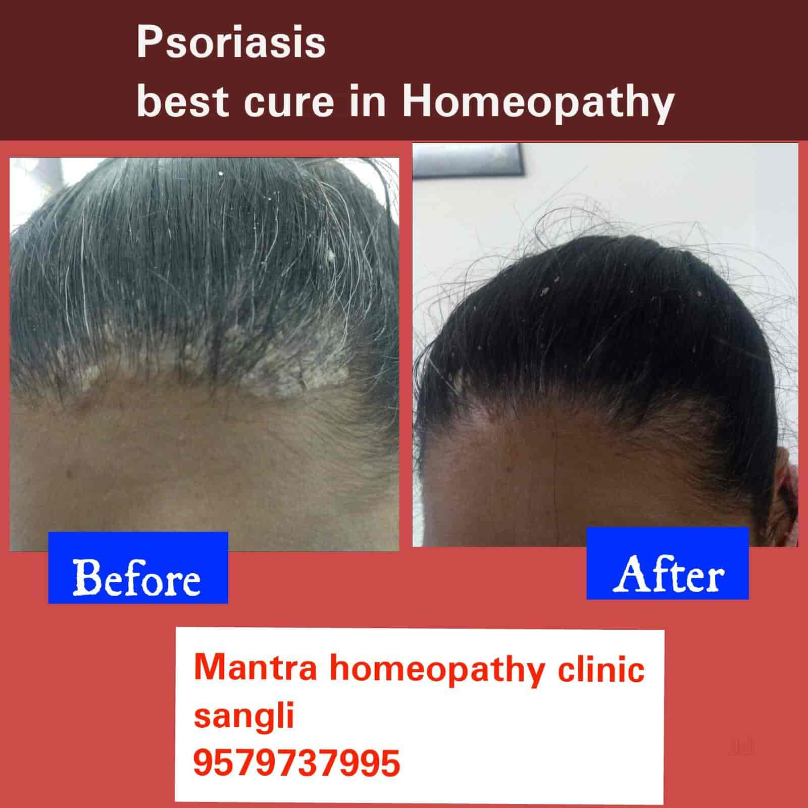 Mantra Homeopathy - Dermatologists - Book Appointment Online
