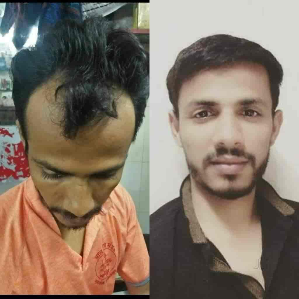 Fair And Hair Health And Beauty Cure Hair Treatment Clinics Book Appointment Online Hair Treatment Clinics In Woriyur Trichy Justdial